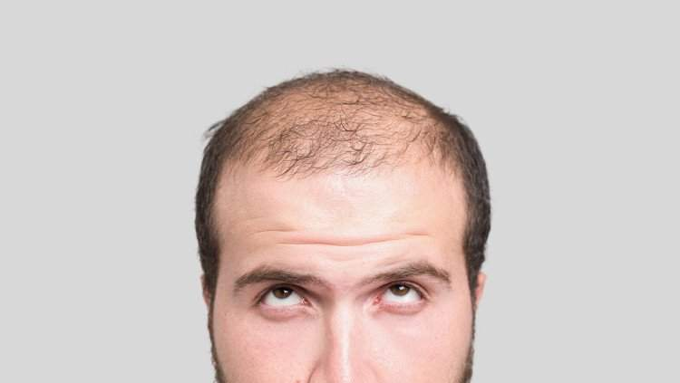 Photo of समय से पहले गिरने लगे हैं भारतीय पुरुषों के बाल, ऐसे रोके बालों का झड़ना
